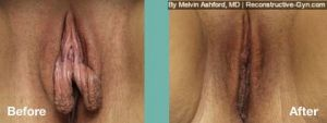 Labiaplasty and Clitoroplasty