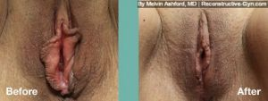 Labiaplasty